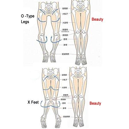 X legs.jpg